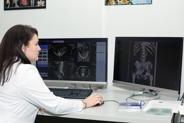 Female doctor examining an CT scanner results