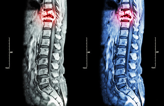 Spine metastasis ( cancer spread to thoracic spine ) ( MRI of thoracic and lumbar spine : show thoracic spine metastasis and compress spinal cord ( Myelopathy ) ) ( sagittal plane )