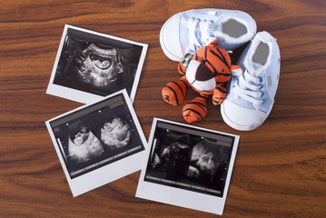 ultrasonography and sneakers