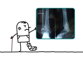 cartoon man injured his foot showing an X-ray