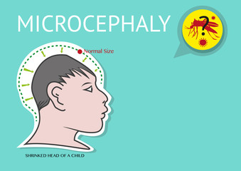 Microcephaly or abnormal smallness of the head linked to Zika Virus  Zika Virus is suspected to be the cause of microcephaly among women in their first trimester pregnancy