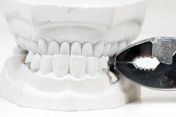 Zahn ziehen