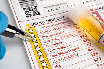 physician filling medical form of urianalysis / Doctor writing a report of analysis of urine for a patient