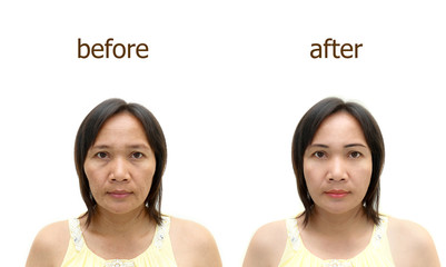 makeup or plastic surgery.