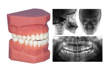 teeth model and cephalometric x-ray isolated on withe