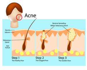 How acne develops. Acne stages. Formation of skin acne or pimple