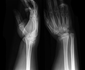 X-ray photos of hand bone fracture patients