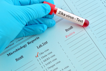 Blood sample with Zika virus positive result