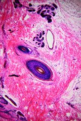 Human skin with hair - microscopic image