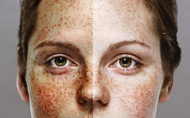 Eyes Woman freckle happy young beautiful studio portrait with healthy skin half