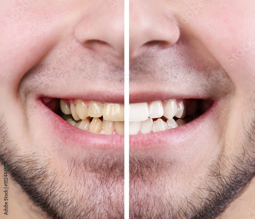 """""""Smiling Man: Before And After Concept"""" Stockfotos Und"""