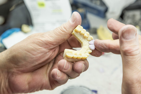 Male Dental Technician Working On A 3D Printed Mold For Tooth Implants In The Lab.