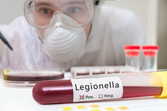 Researcher is analyzing Legionella in test tube with blood.
