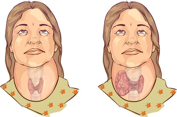 white backround Vector illustration of a goiter