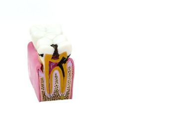 Big tooth model with details on the nerve, dentin, enamel, dental caries, tooth decay, cavities and abscesses, dental diseases.