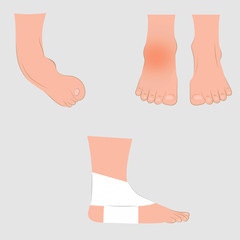 Dislocation of the foot. Vector illustration