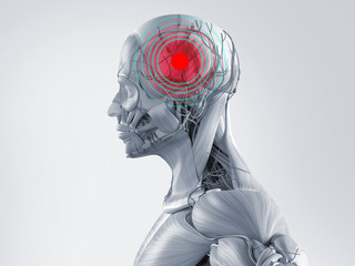 Anatomy model showing a headache. Red spot in area of pain.