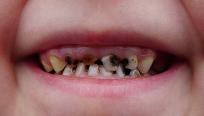 caries on teeth of the child