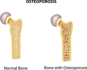 Illustration of bone of hip. normal bone and bone with osteoporosis