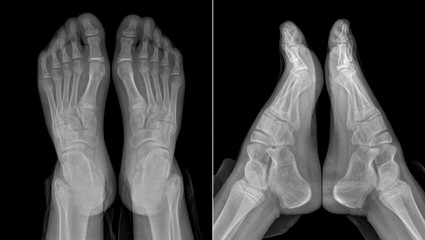 X-ray image of the girl's feet (with partially outlined trousers)