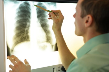 specialist watching image of chest   at xray film viewer