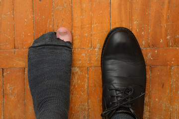 male feet in one Shoe and torn sock