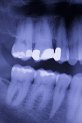 Dental teeth filling dentists xray scan