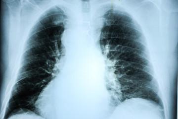 Röntgenaufnahme Thorax Brustkorb