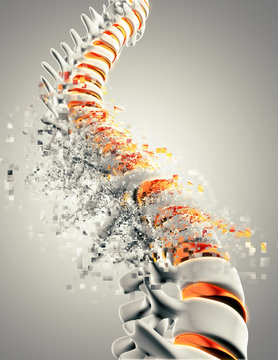 3D spine with pixelated effect