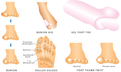 Foot with a painful bunion