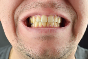 Detailed image of man showing his teeth. Dental health care. Hyg