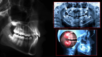 radiography dental scan