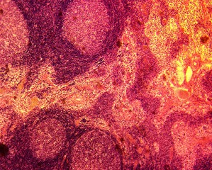 Domestic cat (Felis catus) stained lymph node