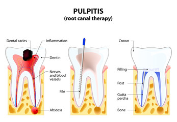 Pulpitis. root canal therapy