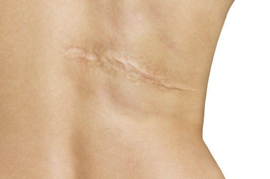 Scar after operation on back of women on white background
