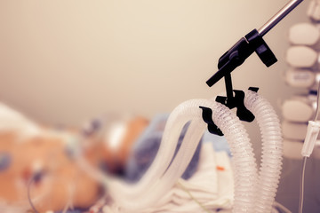 Patient on the artificial lung ventilation