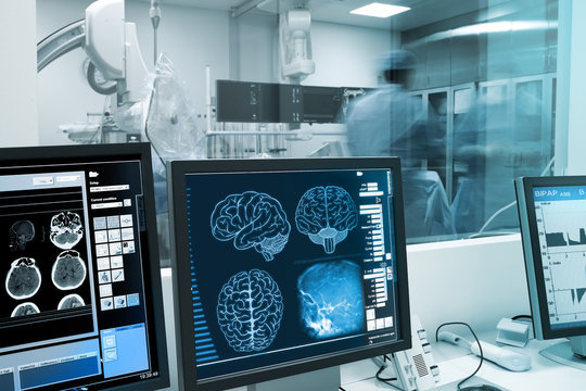 Study, visualization and practice with the human brain in x-ray