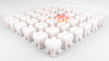 Tooth, aching tooth among healthy, that stands out from the rest, dentures, dental.