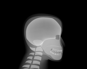 Side view Human head skull on x-ray film