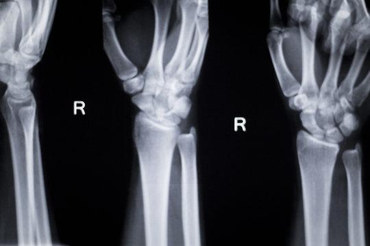Wrist hand injury xray scan