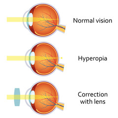 Hyperopia corrected by a plus lens