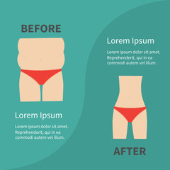 Before after infographic Woman fat and skinny figure red underwear. Healthy unhealthy lifestyle Flat design