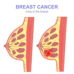 sectional tumor and breast cancer