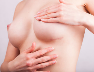 Scar after cosmetic breast surgery, plastic correction