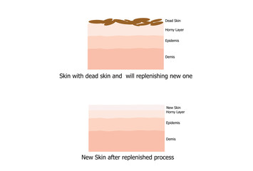 Skin replinished the new one after the peel the dead skin