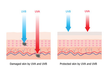 Skin compare between skin with spectrum-boarding sunscreen and n