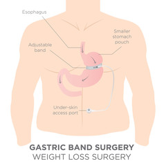 Gastric Band for Weight Loss.  If you Tighten or Loosen it, It Lets More Food in the Lower Stomach.  The Doctor Assistant Adjusts the Tightness of the Band with a Port that's Under the Skin.
