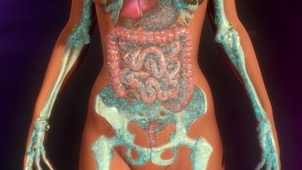 Metastasis Infection