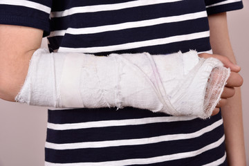 Broken arm with plaster