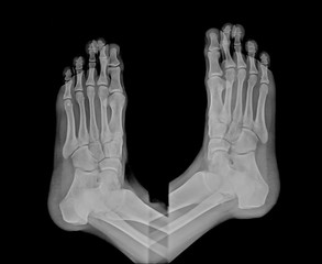 human right and left foot ankle xray picture
